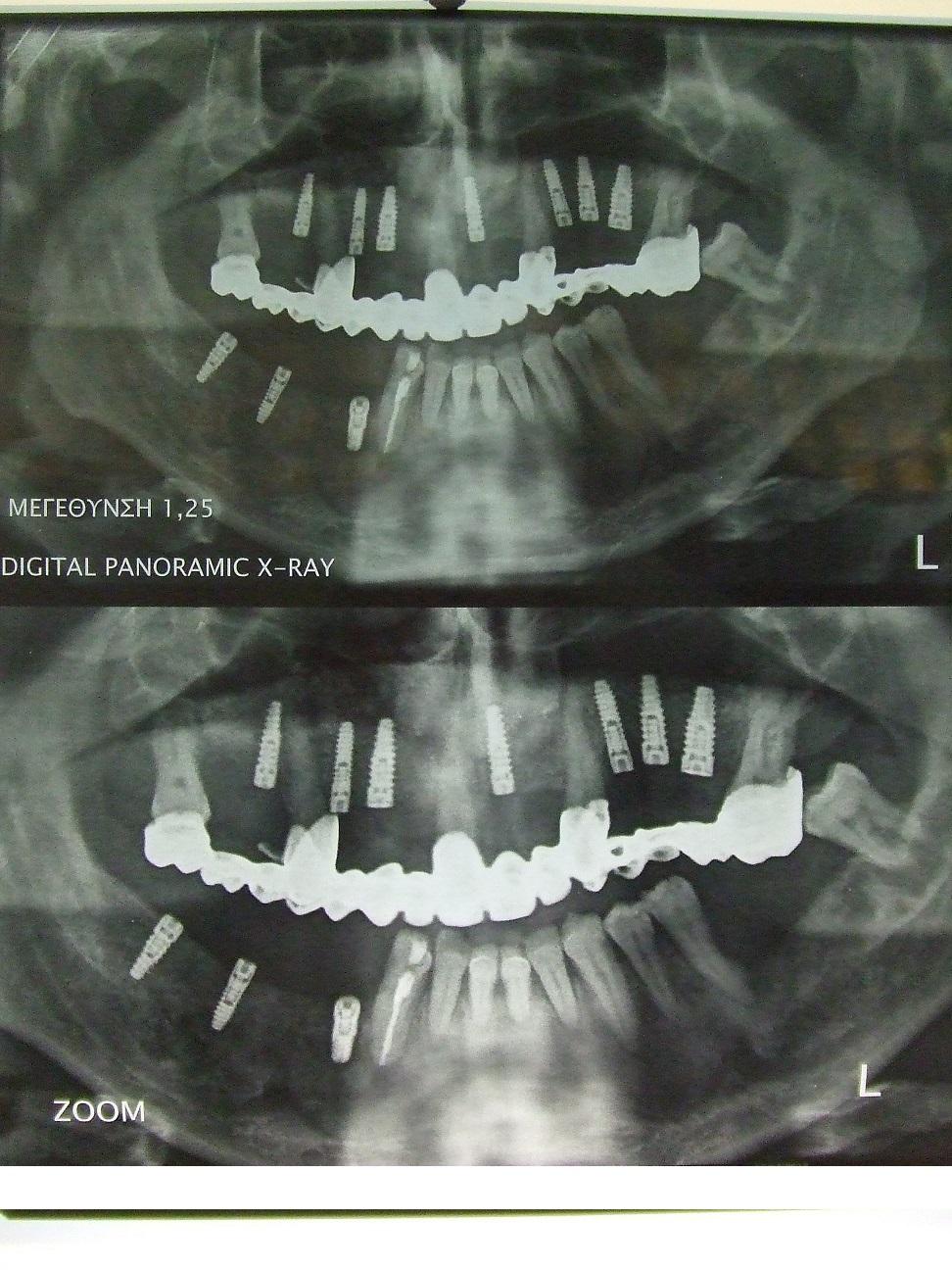 Implants Xray