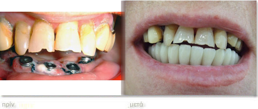 Implants athens voulasmile