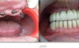 12 δόντια σε έξι εμφυτεύματα